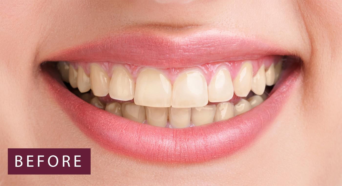 Zoom Teeth Whitening Queensgate Dental Practice