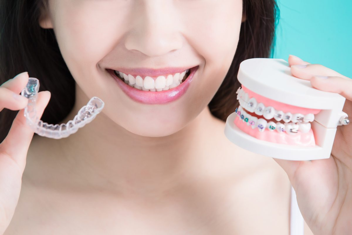 queensgate-adult-braces-1200x800.jpg